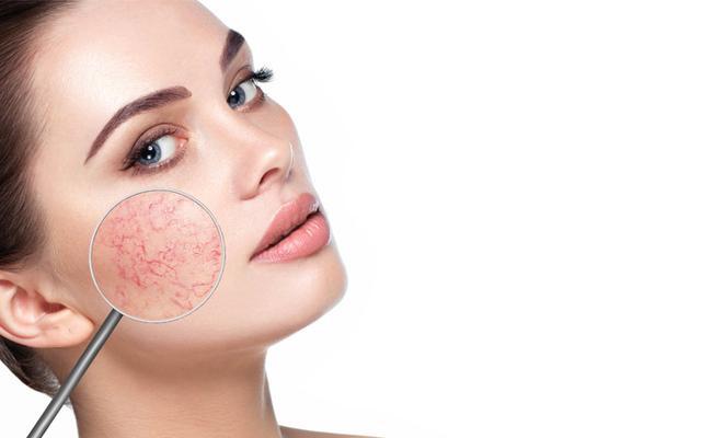 Top Skincare Strategies For Your Sensitive Skin